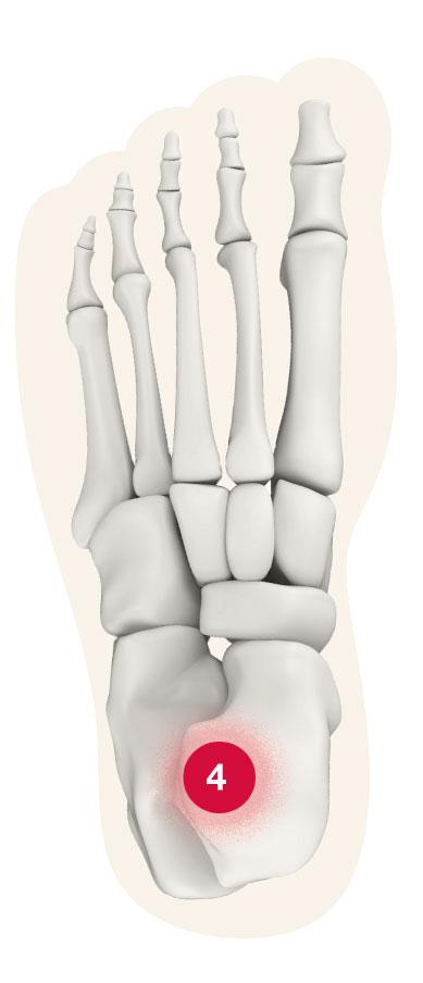 Fuß Schmerz-Zone Punkt 4
