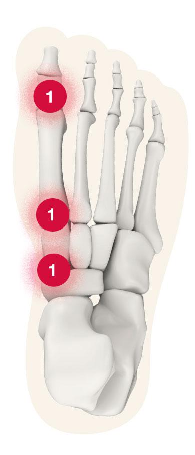 Fuß Schmerz-Zone Punkt 1