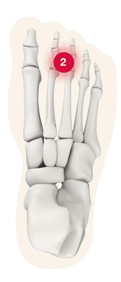 Fuß Schmerz-Zone Punkt 2