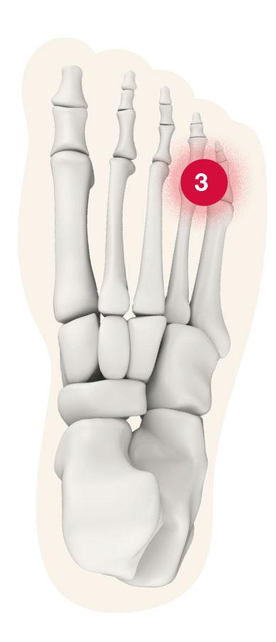 Fuß Schmerz-Zone Punkt 3
