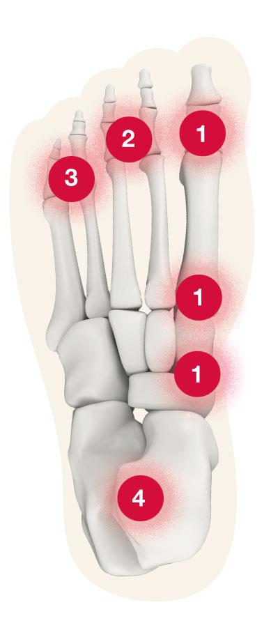 Fuß Schmerz-Zonen