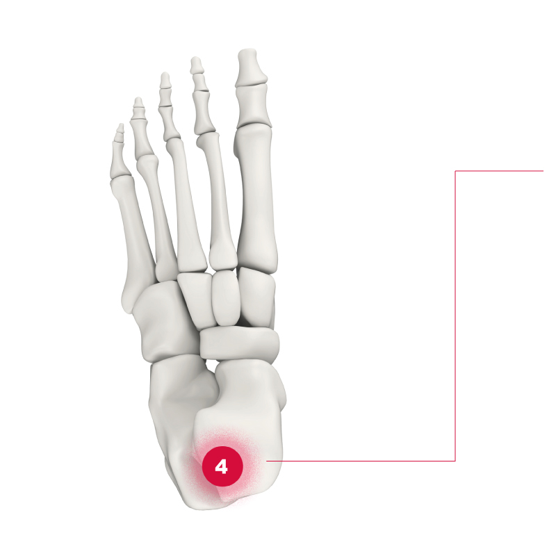 Schmerzpunkt am Fuß - Punkt 4 Ferse bzw Achillessehne